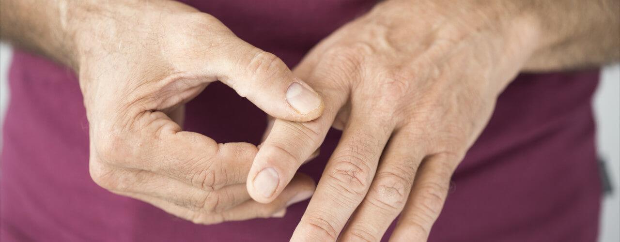 arthritis San Francisco CA